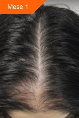 slide-before-woman-50-1.jpg